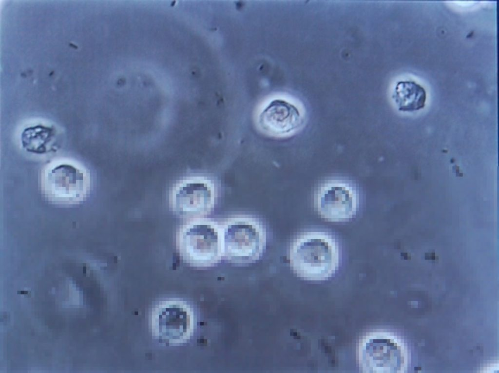 Microscope view of infected urine.