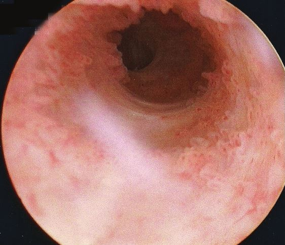 View up a urethra, from a cystoscope.
