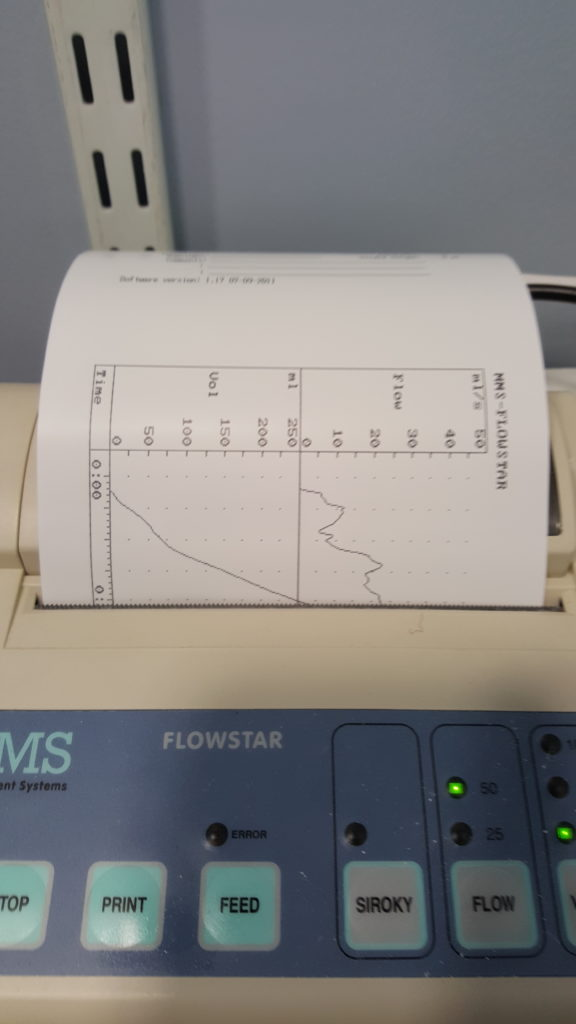 A graphing printer describes Dan Q's urine flow. The 'flow rate' graph shows an initial peak, then a trough, then continues to a higher sustained peak.